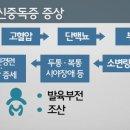 동상이몽2 추자현 임신중독증 고백, 임신중독증 증상은?