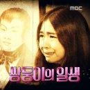 신비한TV 서프라이즈-쌍둥이의 일생(샴쌍둥이의 시초)