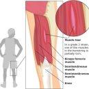 햄스트링 부상과 재발 방지를 위한 재활훈련