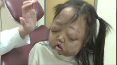 '신경섬유종'으로 고통받고 있는 10살 여진 양